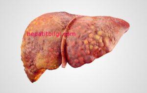 akut hepatit b belirtileri ne zaman başlar