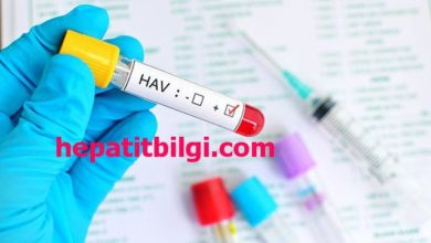 Photo of hepatit a belirtileri