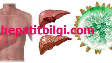 Photo of hepatit c belirtileri