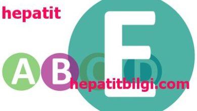 hepatit e nedir