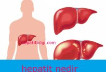 Photo of hepatit nedir
