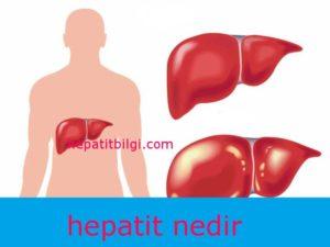 hepatit nedir