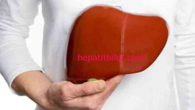 Photo of kronik hepatit