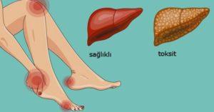 toksik hepatit